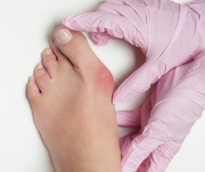 Bunions and What They Are